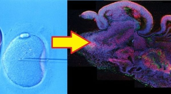 biology report on mini brains organoids grown Lab-grown mini-brains that snap together like building blocks these pea-sized 'organoids' can connect to form a functioning mini-mind the organoids will.